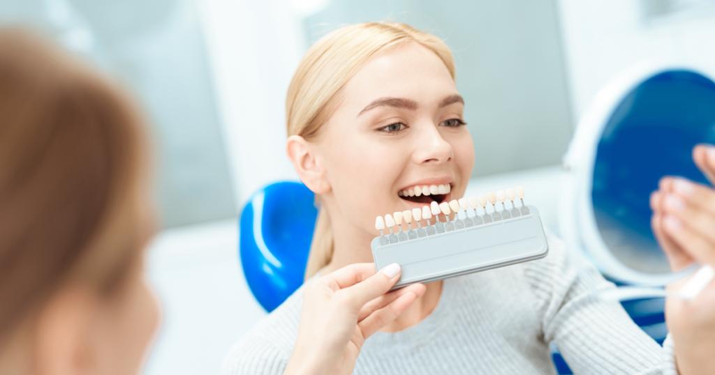 Šta treba znati pre izbeljivanja zuba?