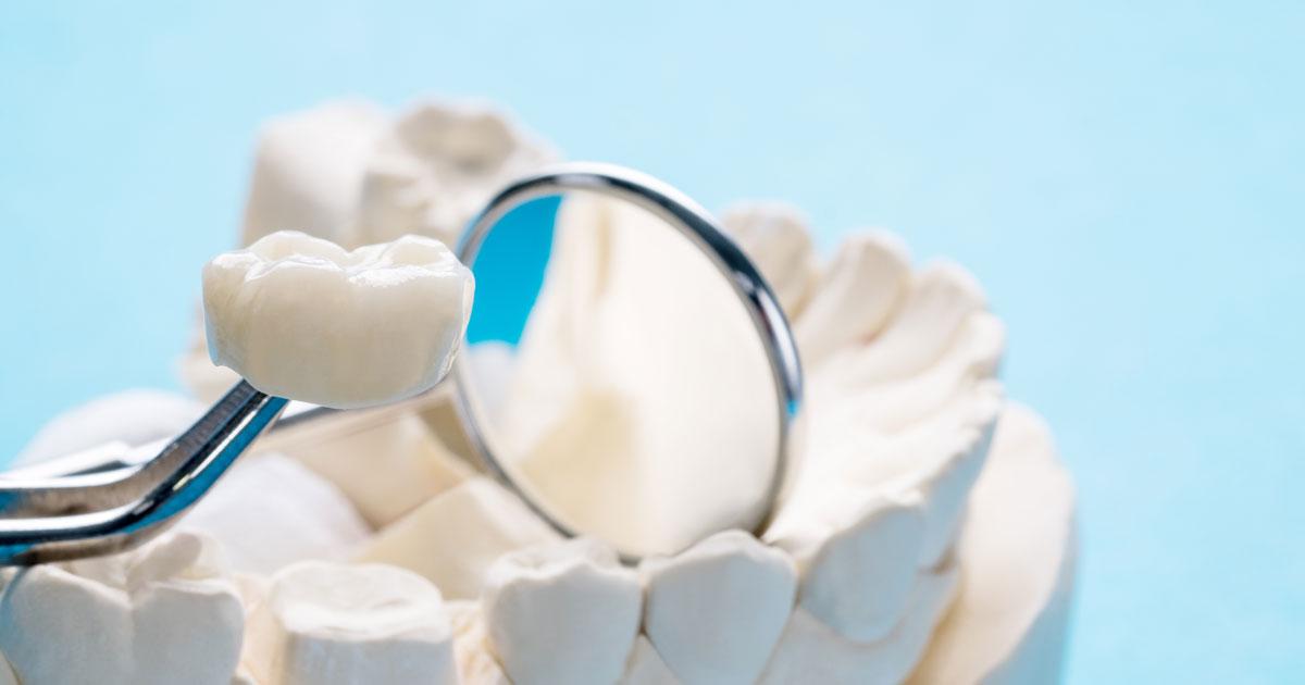 Bezmetalne krunice - zlatni standard savremene stomatologije
