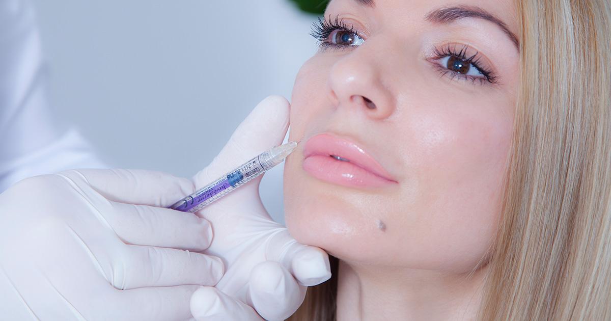 Hijaluronski fileri - Popunjavanje usana